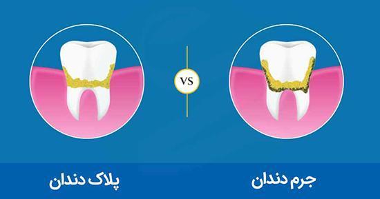 روش های سنتی جِرم گیریِ دندان در خانه