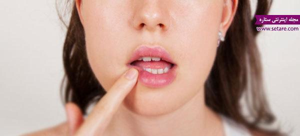 درمان تبخال لب به روش های خانگی و دارویی
